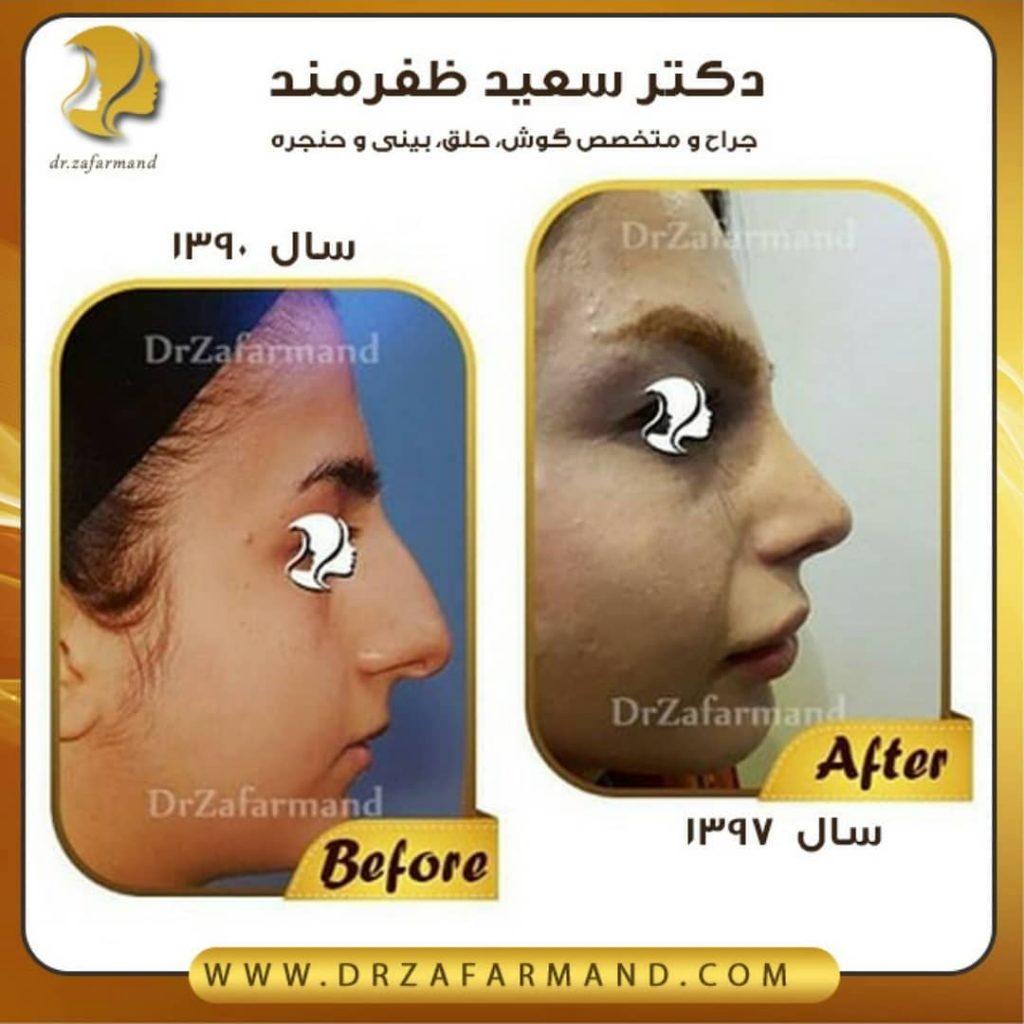 عکس قبل و بعد از جراحی بینی از راست