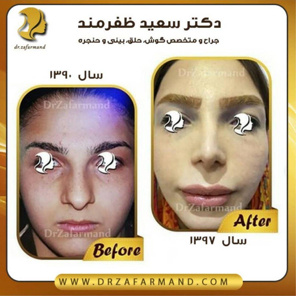 عکس قبل و بعد از جراحی بینی از روبرو
