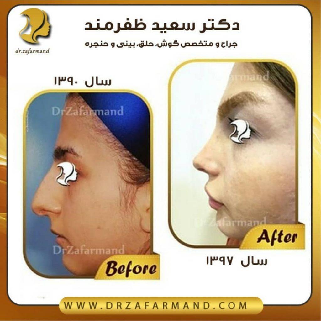 عکس قبل و بعد از جراحی بینی از چپ