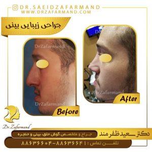 جراحی بینی سر پایین