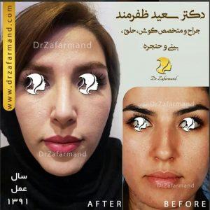 جراحی بینی استخوانی طبیعی