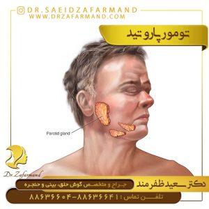تومور پاروتید