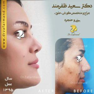 جراحی بینی استخوانی زنانه