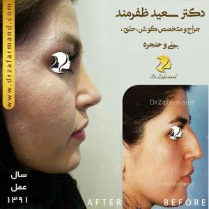 جراحی بینی عقابی
