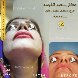 جراحی تقارن سوراخ بینی