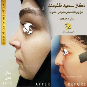جراحی زیبایی بینی گوشتی در دختران