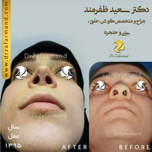 جراحی سوراخ های بینی