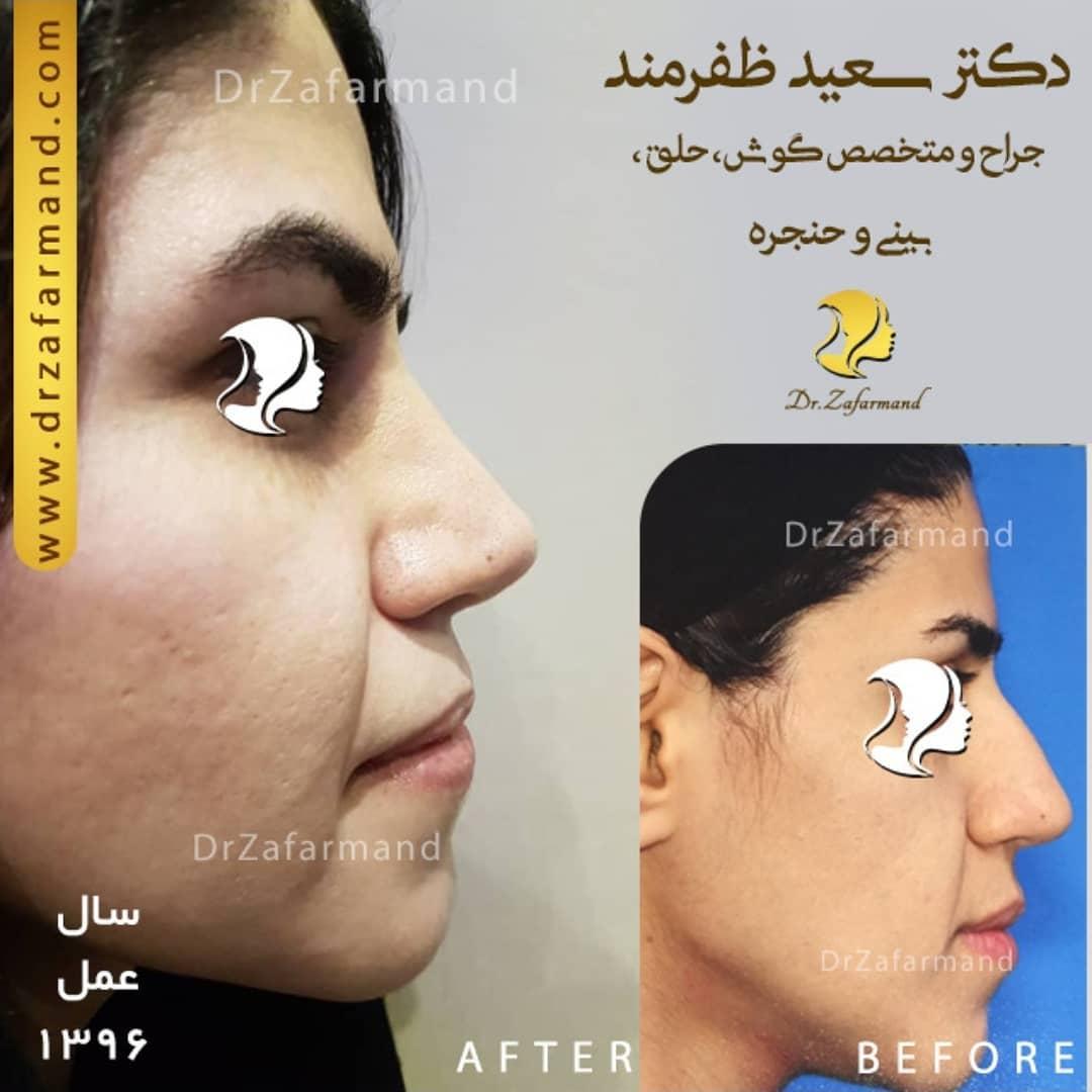 جراحی بینی استخوانی