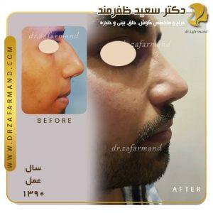 جراحی بینی گوشتی در مردان