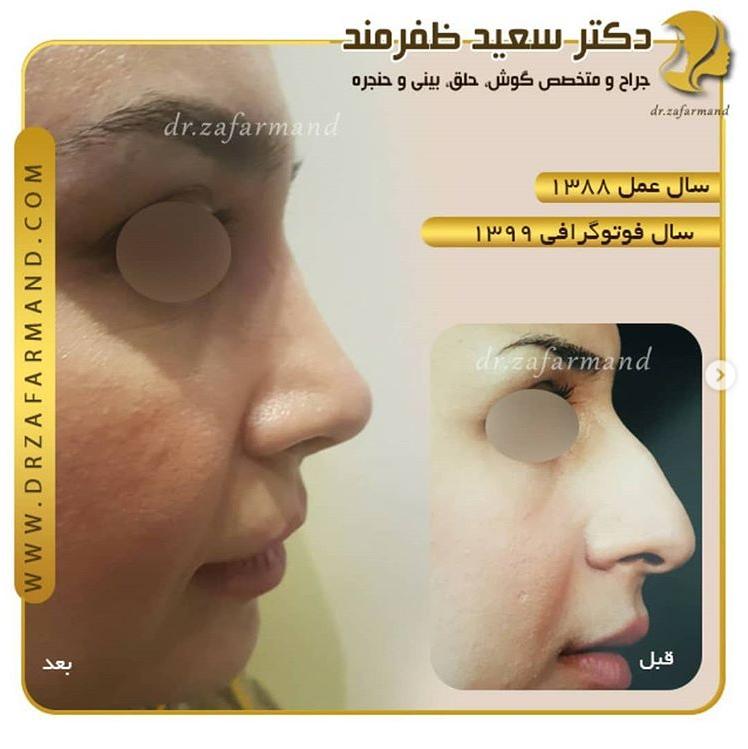 بایدها و نبایدهای جراحی بینی
