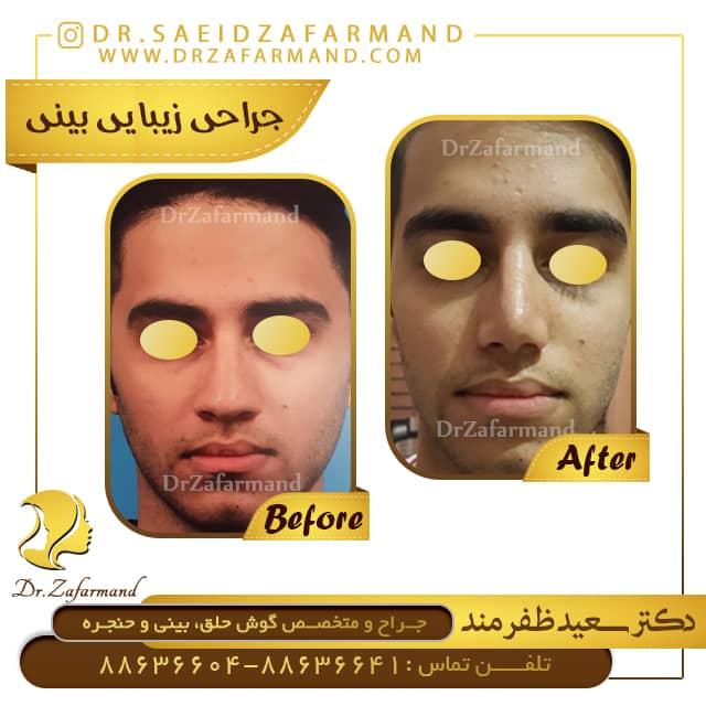 نمونه-کار-جراحی-بینی-از-روبرو-