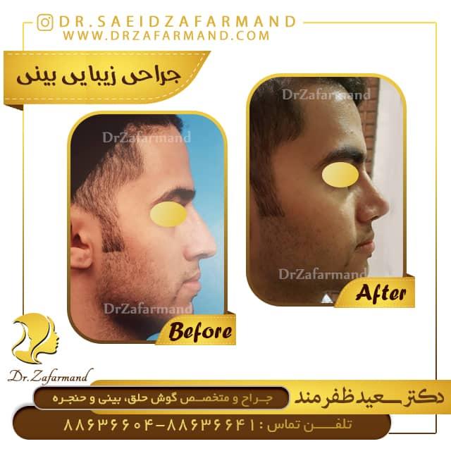 نمونه-کار-جراحی-بینی-از-پهلو