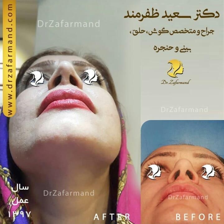 جراحی ترمیم بینی استخوانی